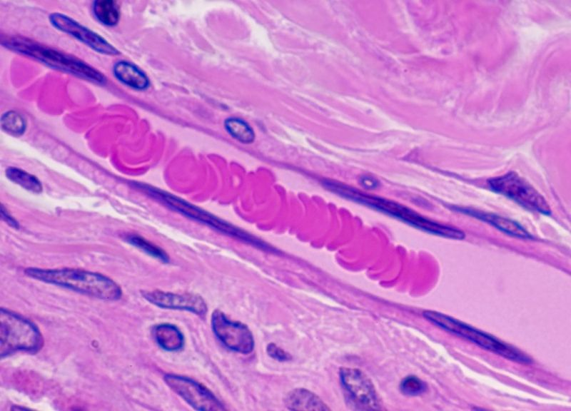 microscopic image of blood vessel and Endothelial Cells