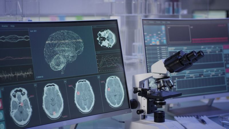 concept brain scans and microscope in laboratory