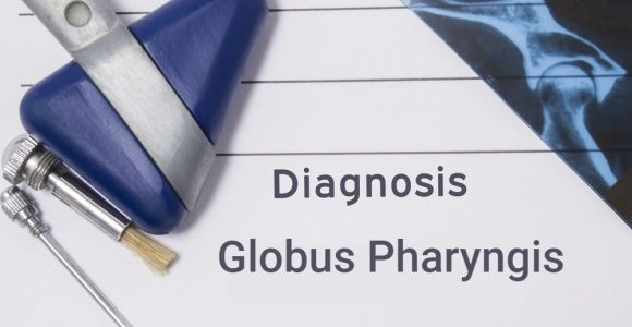 Is Globus Pharyngis (A Lump in the Throat) Serious?