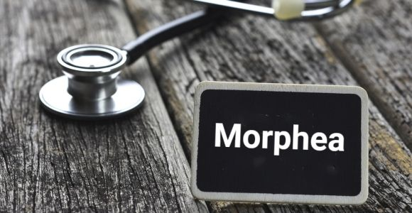 Signs, Causes, and Treatments of Morphea