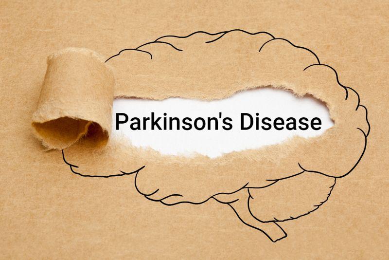 """brain diseases concept """"parkinson's disease"""""""
