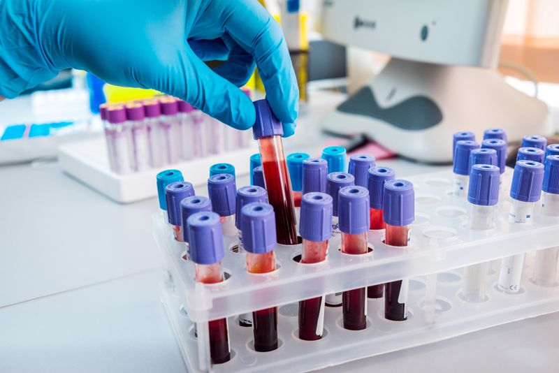 medical gloved hand inspecting vials of blood