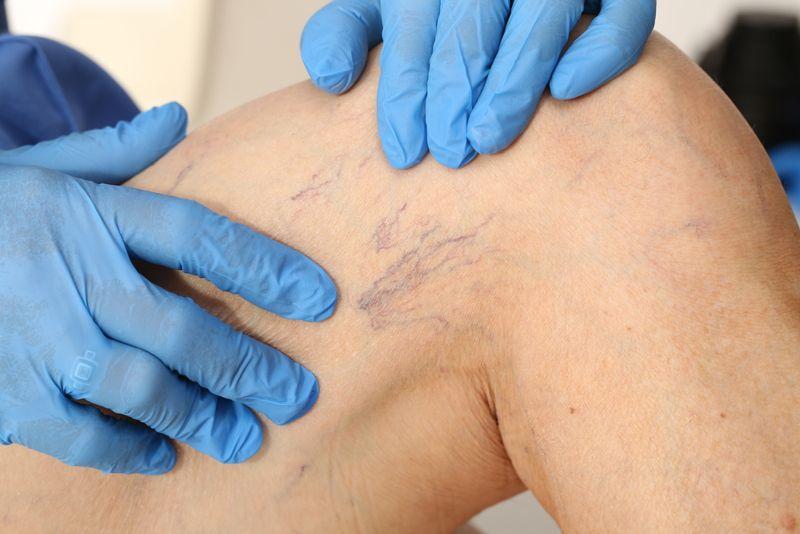 dermatologist inspecting spider veins on patient's leg