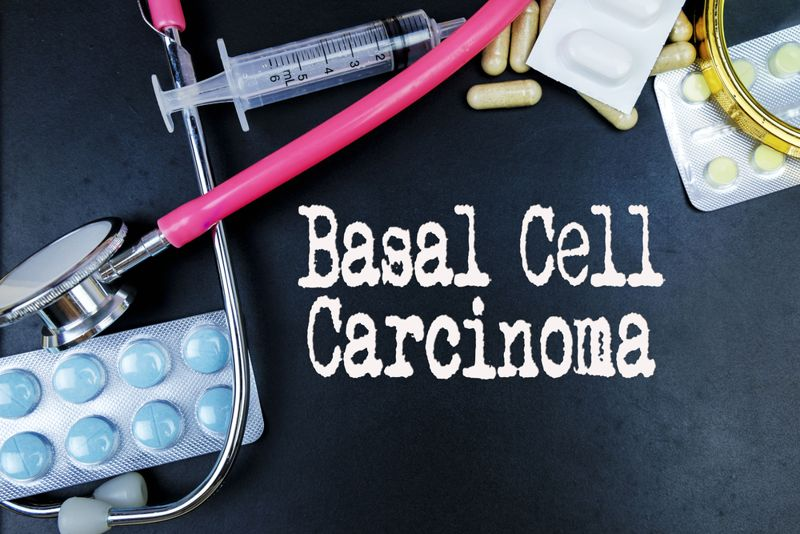basal cell carcinoma words concept