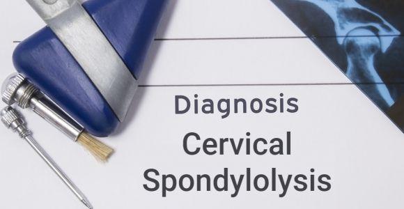 Cervical Spondylolysis: Fractures of the Cervical Vertebrae