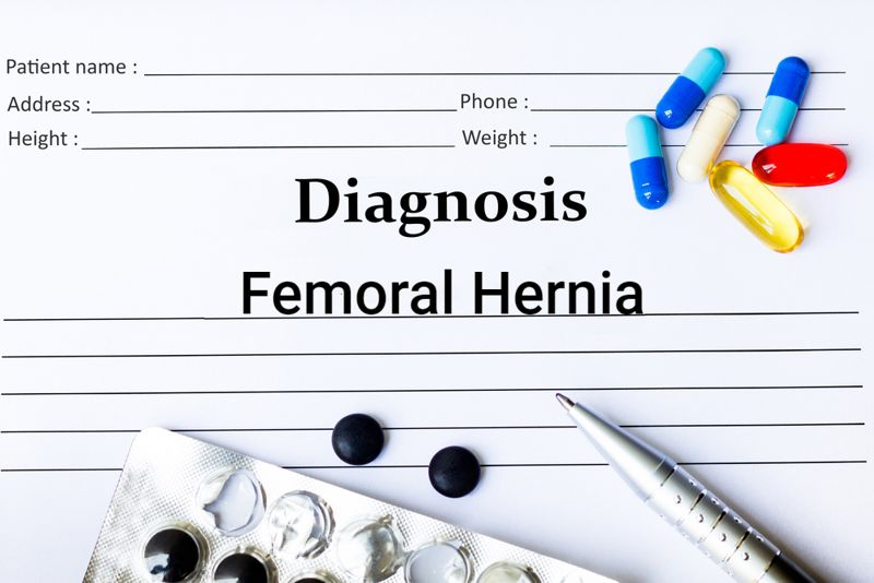 diagnosis medical chart concept for femoral hernia
