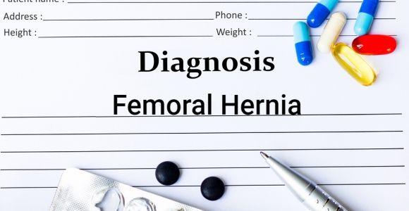 Femoral Hernia Anatomy, Causes, and Symptoms