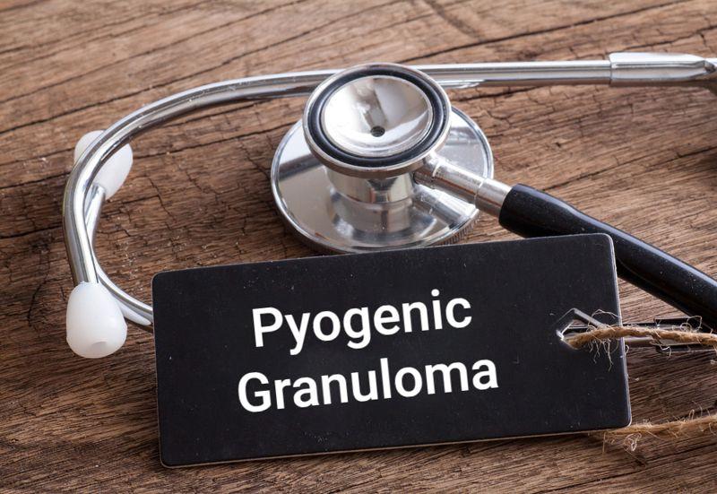 """stethoscope concept image """"pyogenic granuloma"""""""