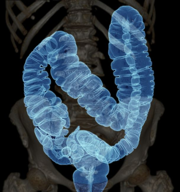 image of the colon against the human skeleton