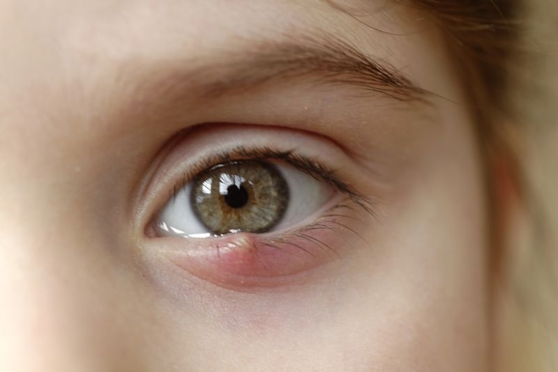 close up of little girl with stye on her lower eyelid