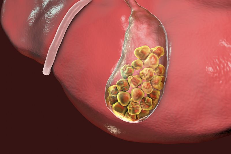 digital image of the gallbladder with gallstones