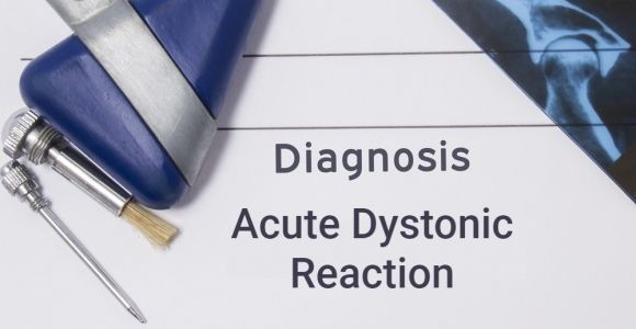 Acute Dystonic Reaction Causes, Symptoms, and Treatment