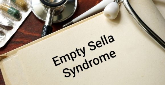 Empty Sella Syndrome and Pituitary Function