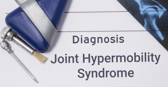 Joint Hypermobility Syndrome: More Than Just Flexible Joints