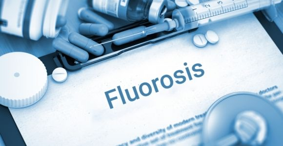 Triggers, Symptoms, and Prevention of Fluorosis