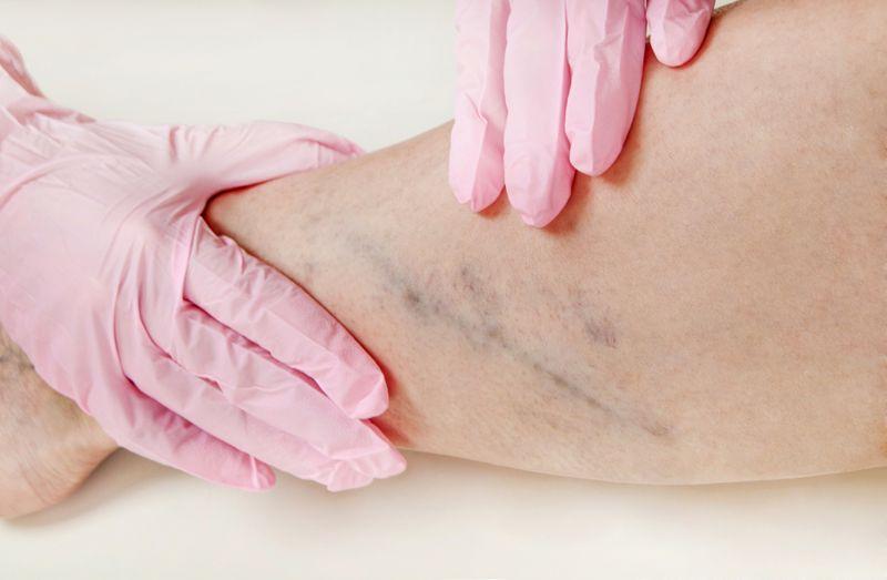 doctor examining varicose veins on woman's leg