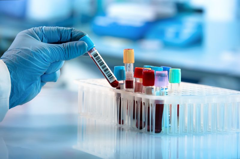 cropped image of researcher with blue glove choosing blood sample in vial