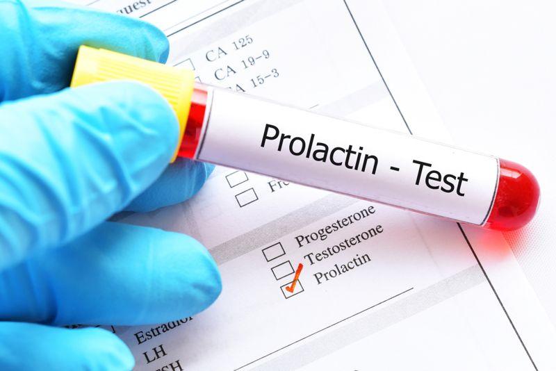 prolactin hormone blood test concept image