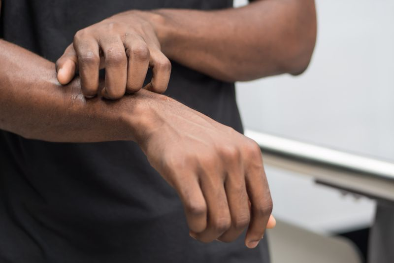 man scratching his lower arm; itchy skin concept