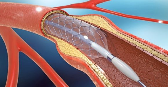 Types of Stents and Their Purposes