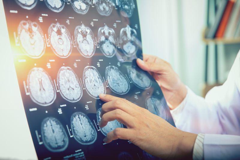 doctor examining MRI scans of patient's brain