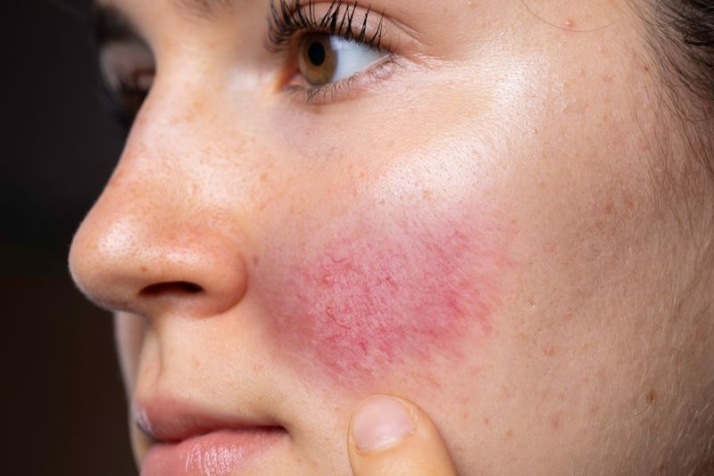 cropped image close up of flushed red spot on woman's cheek