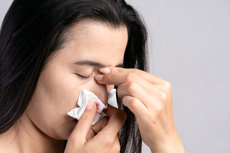 woman with a nosebleed using a tissue