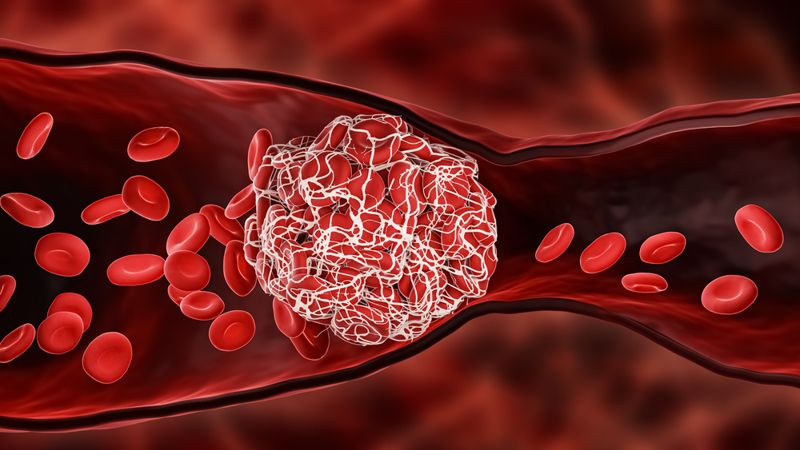 digital illustration of a blood clot