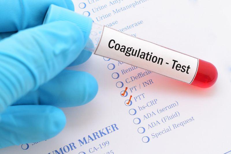 blood test concept with coagulation label on test tube