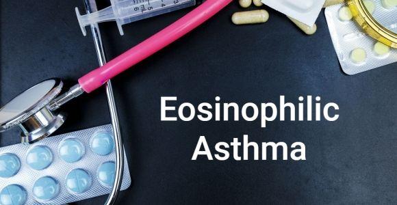 Eosinophilic Asthma: A Rare Subtype