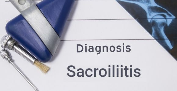 What You Should Know About Sacroiliitis