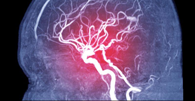 x-ray illustration of a cardiac stroke