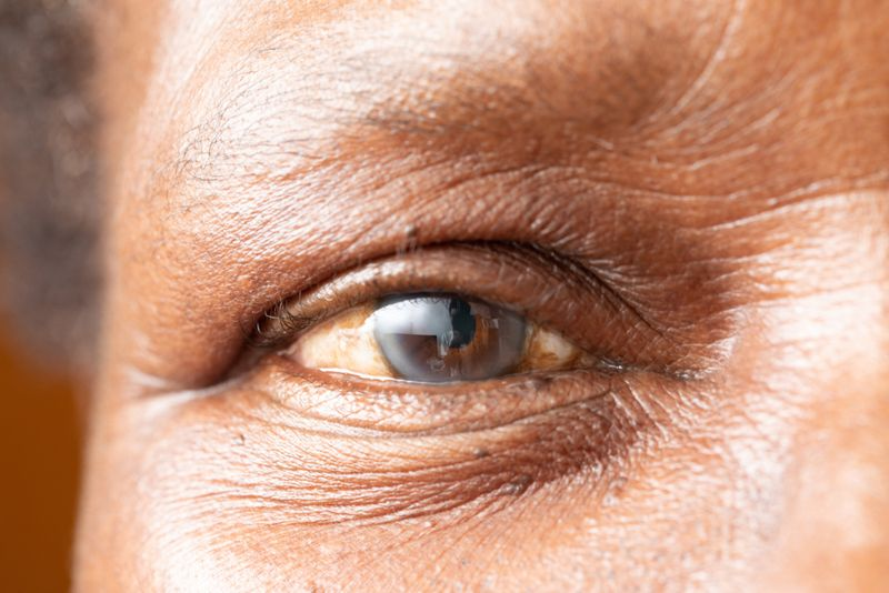 cropped close up of older man with cataracts