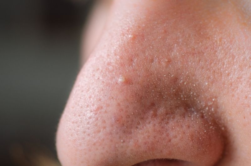 close up of pores on model's nose