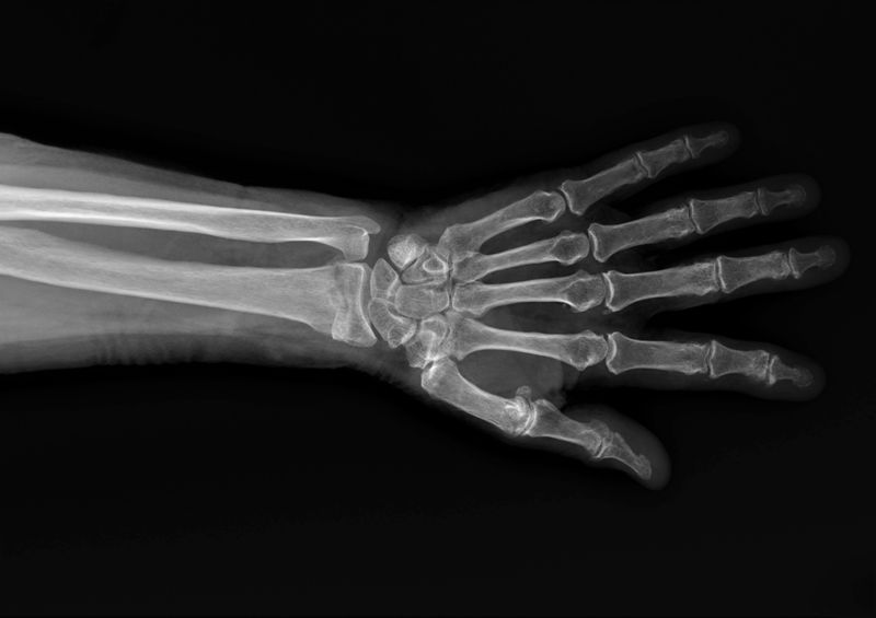 x-ray of a broken wrist bone