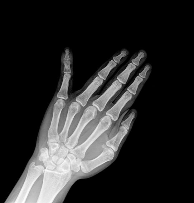 x-ray of a hand with a broken pinky