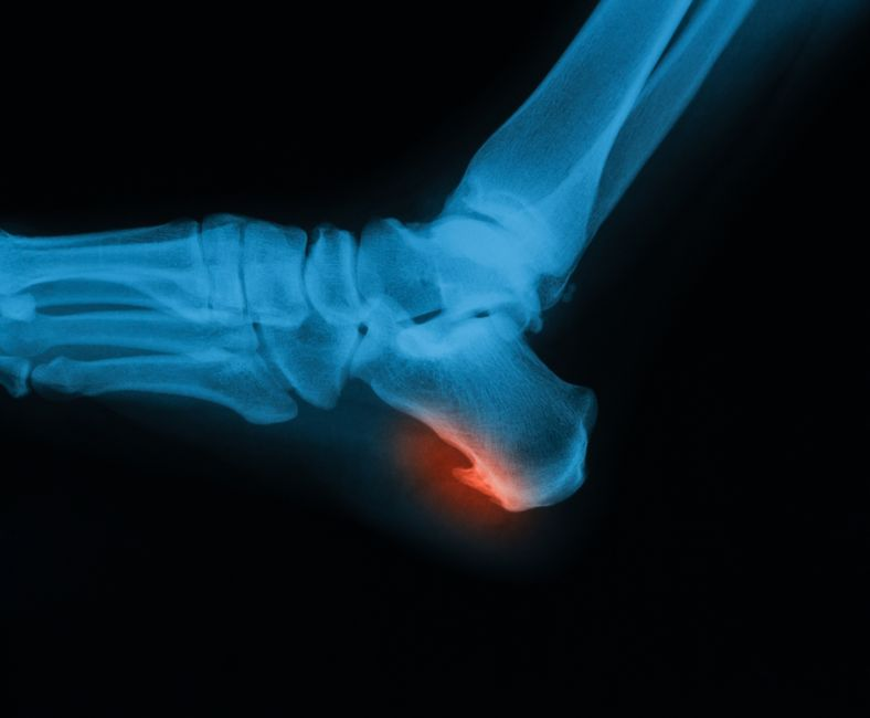 xray of a foot with a bone spur on the heel
