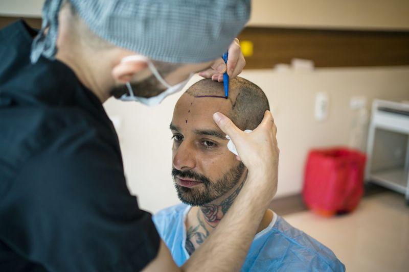 Man having hair transplant