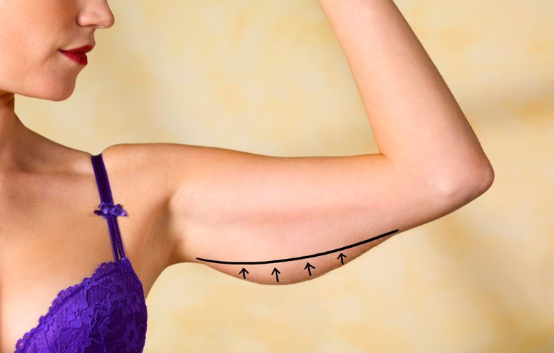 Plastic surgery marks to remove excess skin/fat on woman's arms.