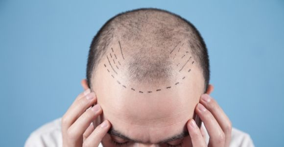 Should You Travel Abroad for Hair Transplant Surgery?