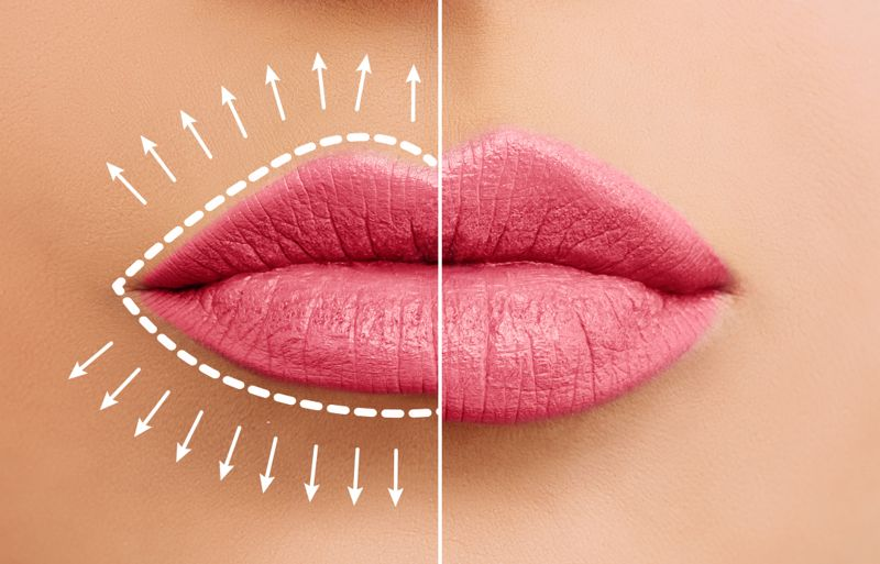 Lip augmentation concept. Woman lips before and after lip filler injections