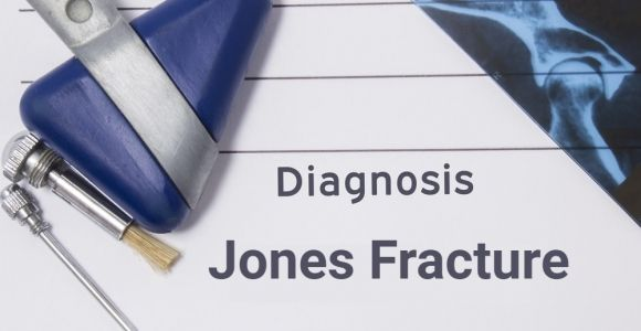 Overview of Jones Fractures on the Foot
