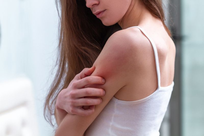 woman scratching her arm, skin irritation