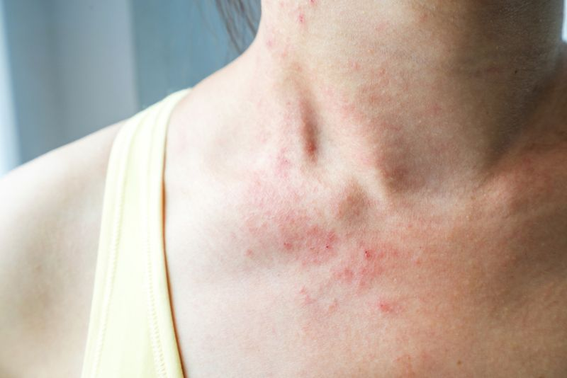 woman with red rash on neck