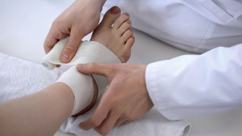 doctor wrapping injured ankle
