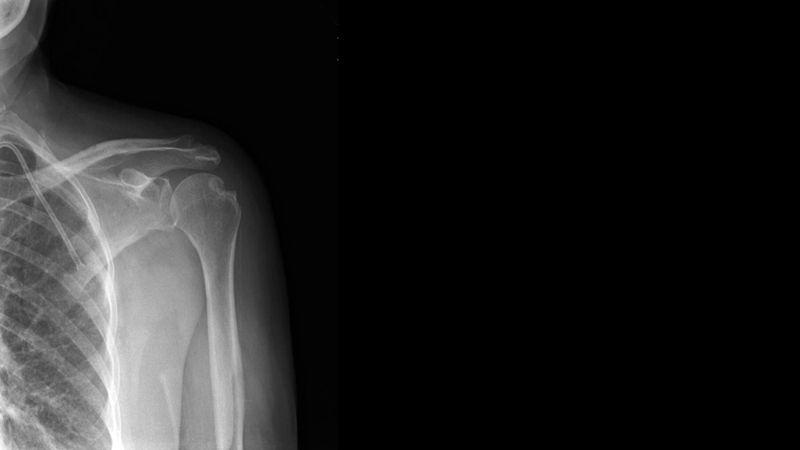 x-ray showing skeleton of shoulder region