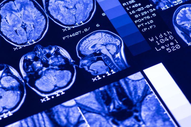 mri scans of a healthy brain