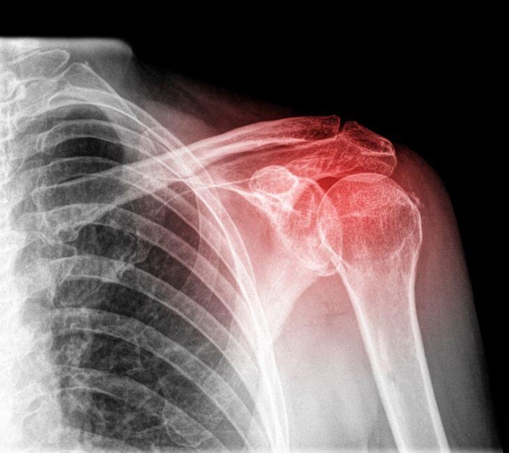 xray showing injured shoulder area
