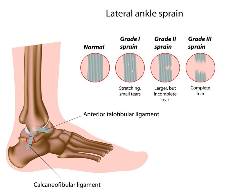 three types of sprains illustration