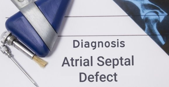 Frequently Asked Questions about Atrial Septal Defects